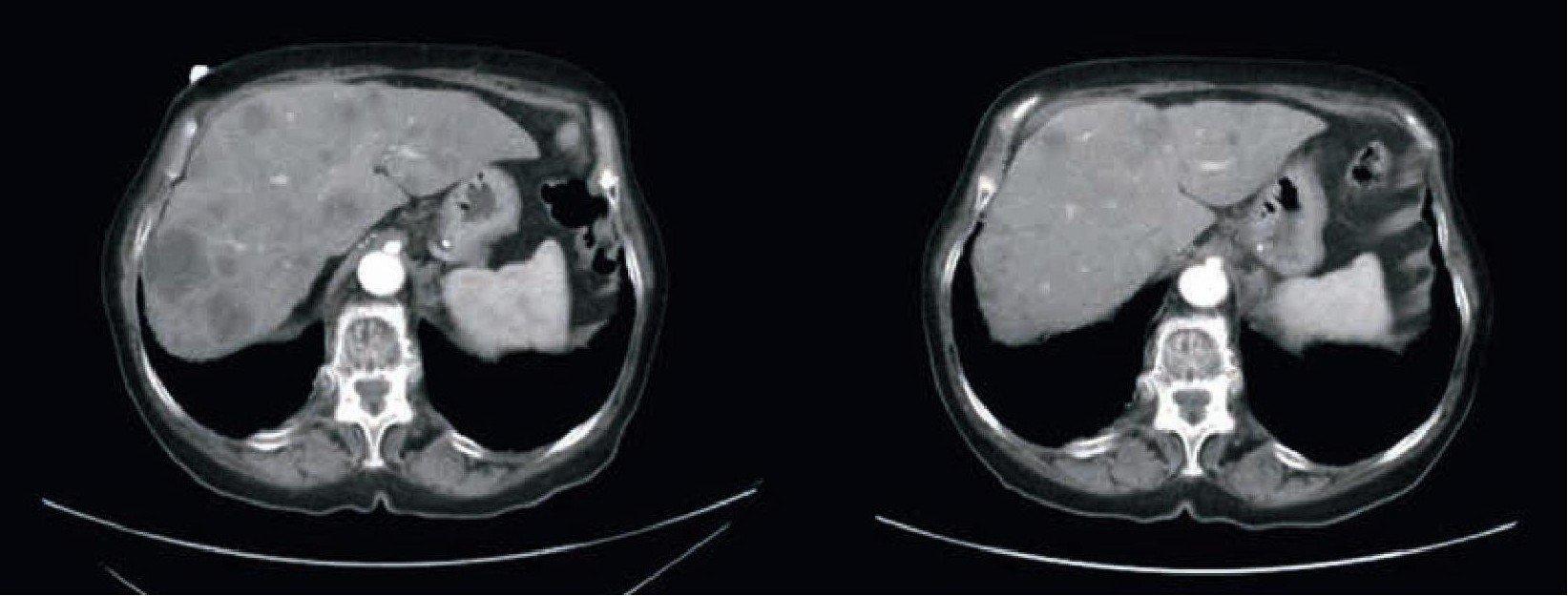 Figura 1. Metastasi epatiche prima (a sinistra) e dopo (a destra) i primi 3 cicli di terapia con doxorubicina liposomiale non pegilata.