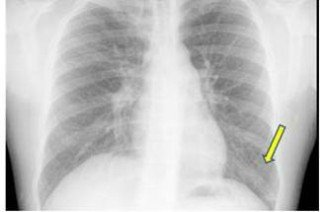 Case report: management of a Mycoplasma pneumoniae pneumonia micro-epidemic in general medicine.