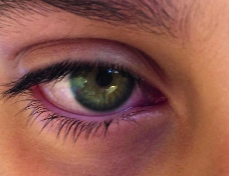 Occhio secco e infiammazione da prolungata esposizione agli UVB