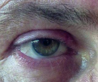 Relapsing blepharitis in suspected Quincke's edema