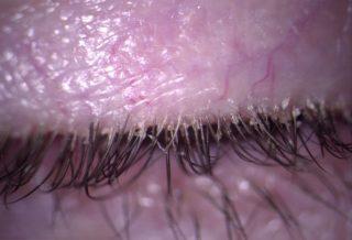 Blefarite anteriore e posteriore cronica trattata con terpinen-4-olo + acido ialuronico 0,15% e aloe e compressa oculare riscaldabile: a proposito di un caso