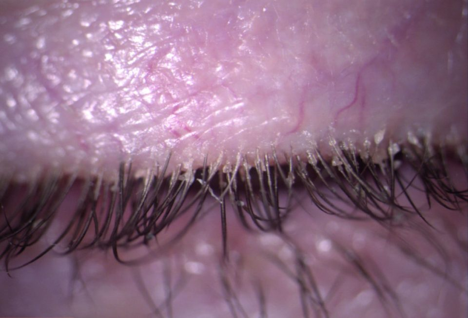 Anterior and posterior blepharitis treated with terpinen-4-ol + hyaluronic acid 0.15% and aloe