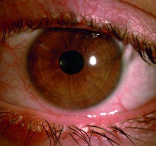 Secchezza oculare associata a disfunzione delle ghiandole di Meibomio e blefarite anteriore
