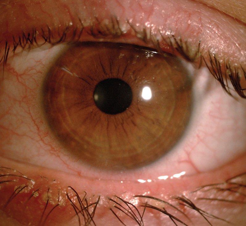 Dry eye in Meibomian gland dysfunction and anterior blepharitis