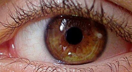 Efficacia di un collirio a base di acido ialuronico 0,15% nella risoluzione dell'occhio secco