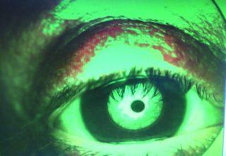 Efficacia a breve termine nel trattamento della blefarite acuta di salviette contenenti terpinen-4-olo + acido ialuronico 0,15% e aloe e compressa oculare riscaldabile: case report personale