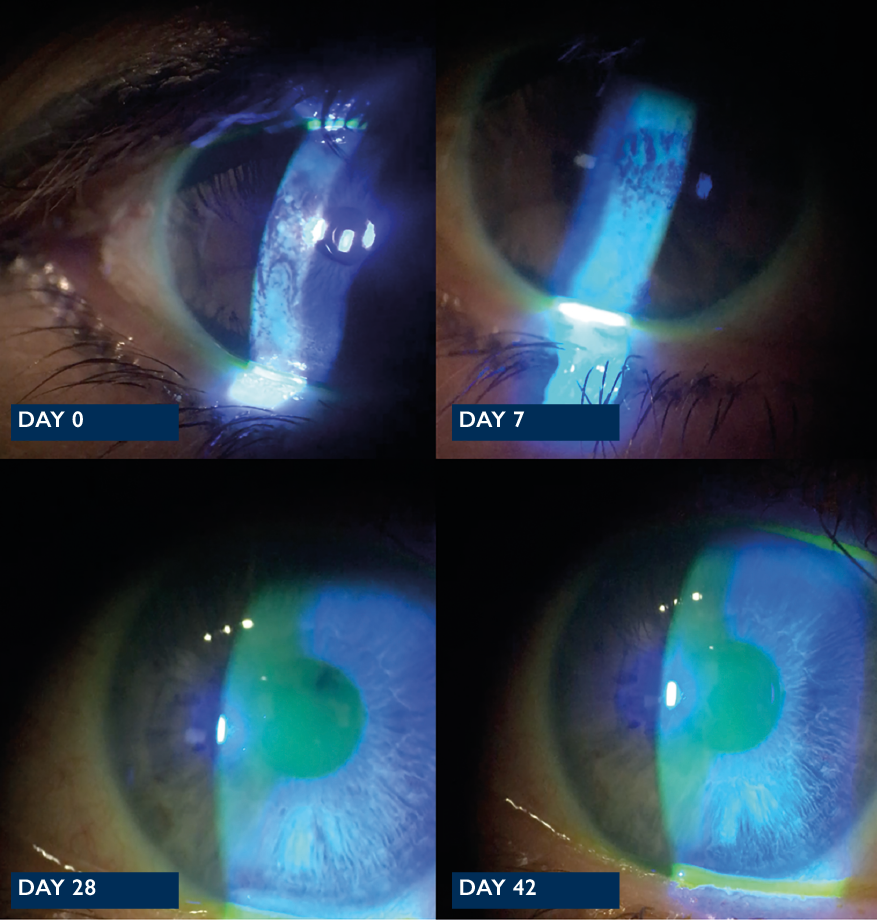 Dry eye as a cause of dissatisfaction after refractive lensectomy with multifocal lens implantation