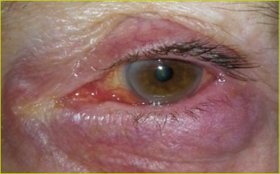 A clinical case of chalazion
