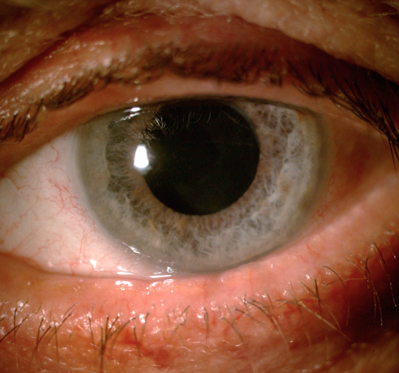 Dry eye in glaucoma