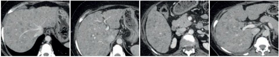Doxorubicina liposomiale e ciclofosfamide in paziente con crisi viscerale da carcinoma della mammella metastatico: un caso di remissione parziale e controllo della malattia