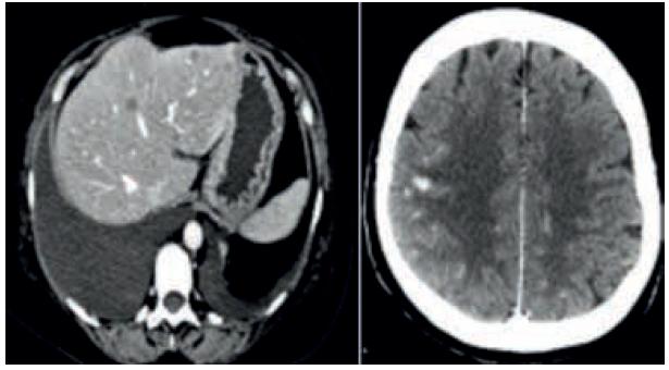 Carcinoma della mammella metastatico. Approccio terapeutico iniziale in paziente al IV stadio