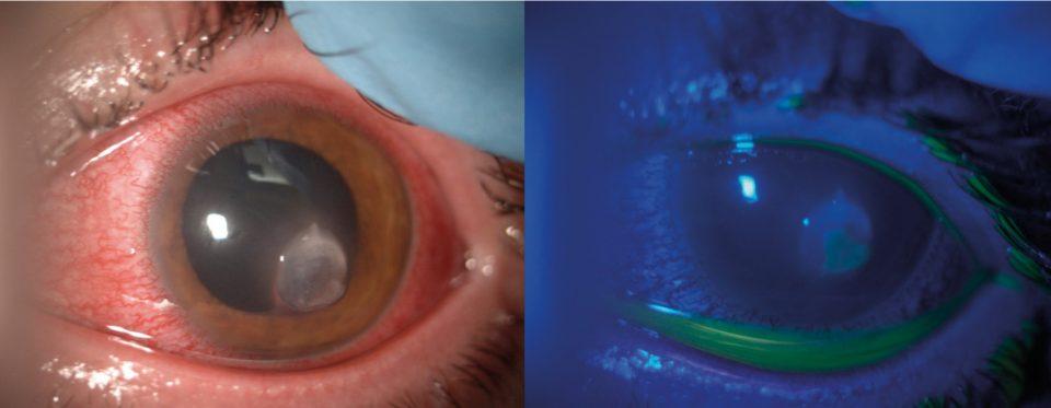 <em>Case report</em> di ulcera corneale in portatore di lenti a contatto